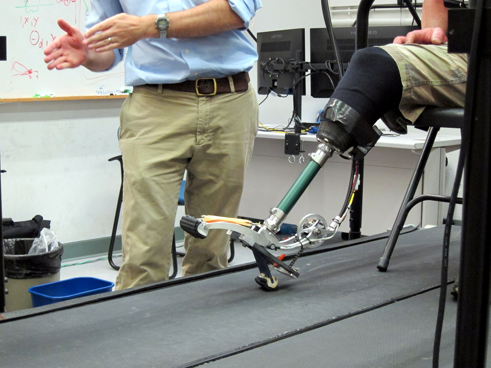 Transtibial prothesis cost