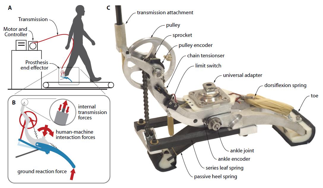 prothesis diagram
